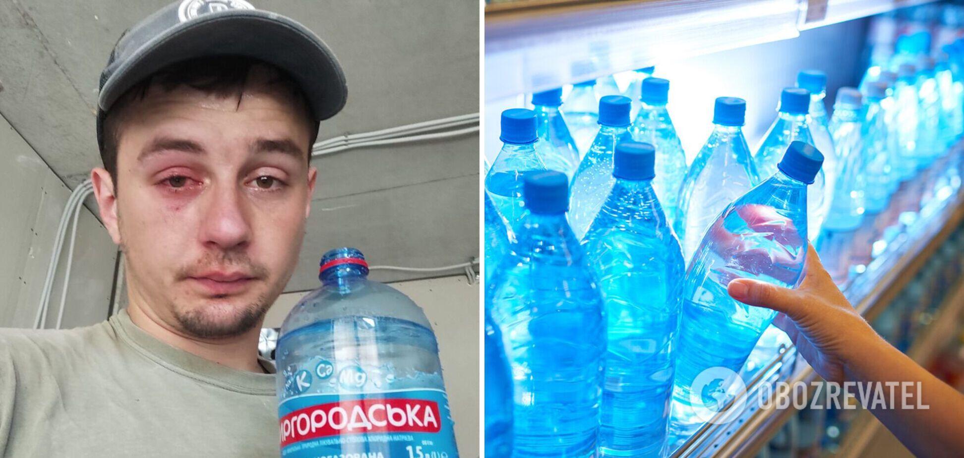 Украинец едва не потерял глаз из-за бутылки минералки. Фото
