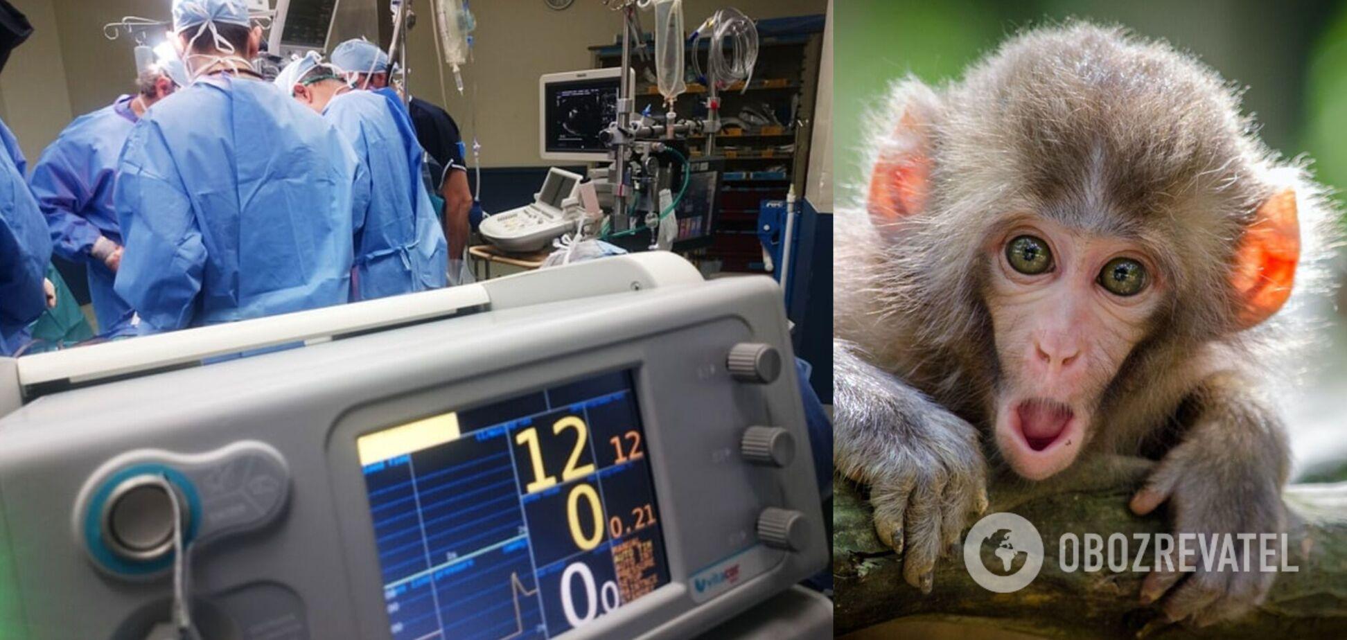 В КНР зафиксирован первый случай смерти человека, заразившегося вирусом обезьяны