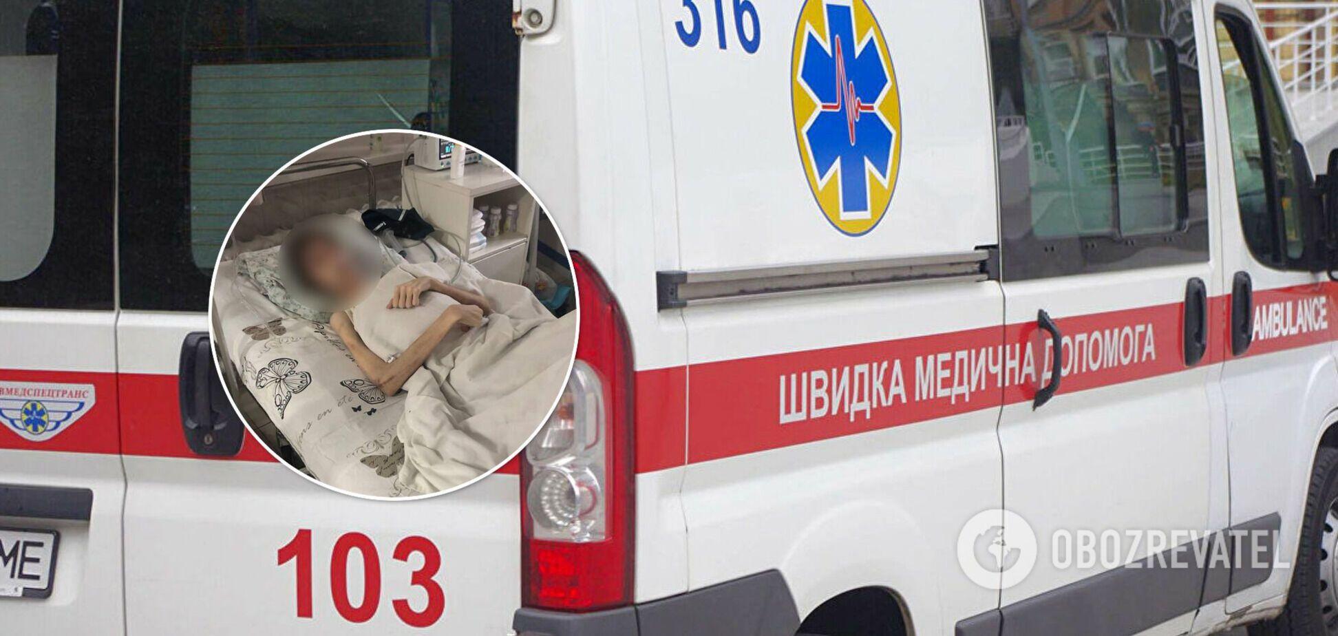 В Одесі батьки 'духовним лікуванням' довели дитину до виснаження і зневоднення. Фото