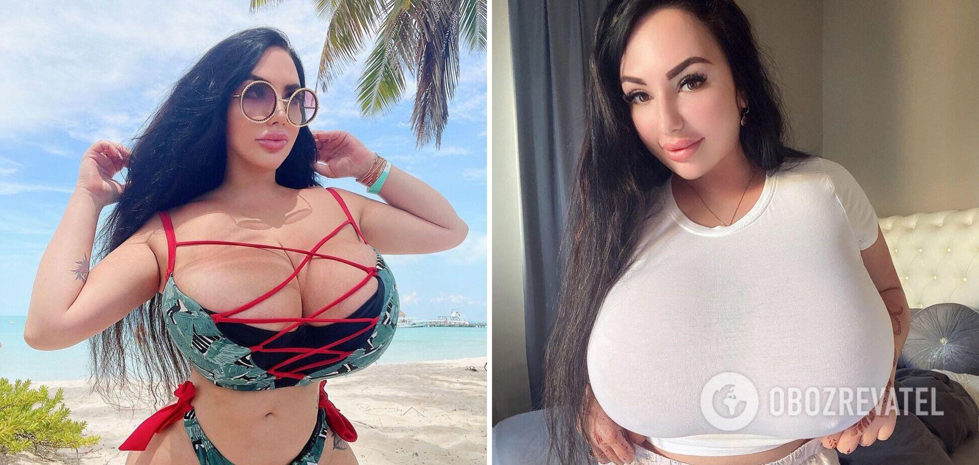 Слишком большая грудь разрушила жизнь 26-летней россиянки. Фото