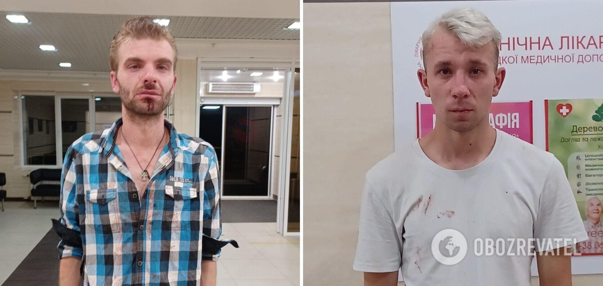 У Львові вчинили напад на вуличного музиканта та поета: залили балончиком та побили. Фото