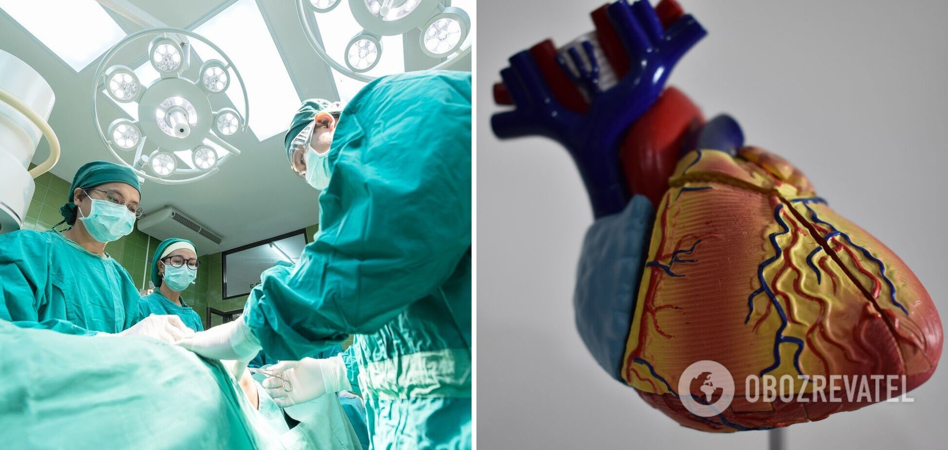 Біодрук органів