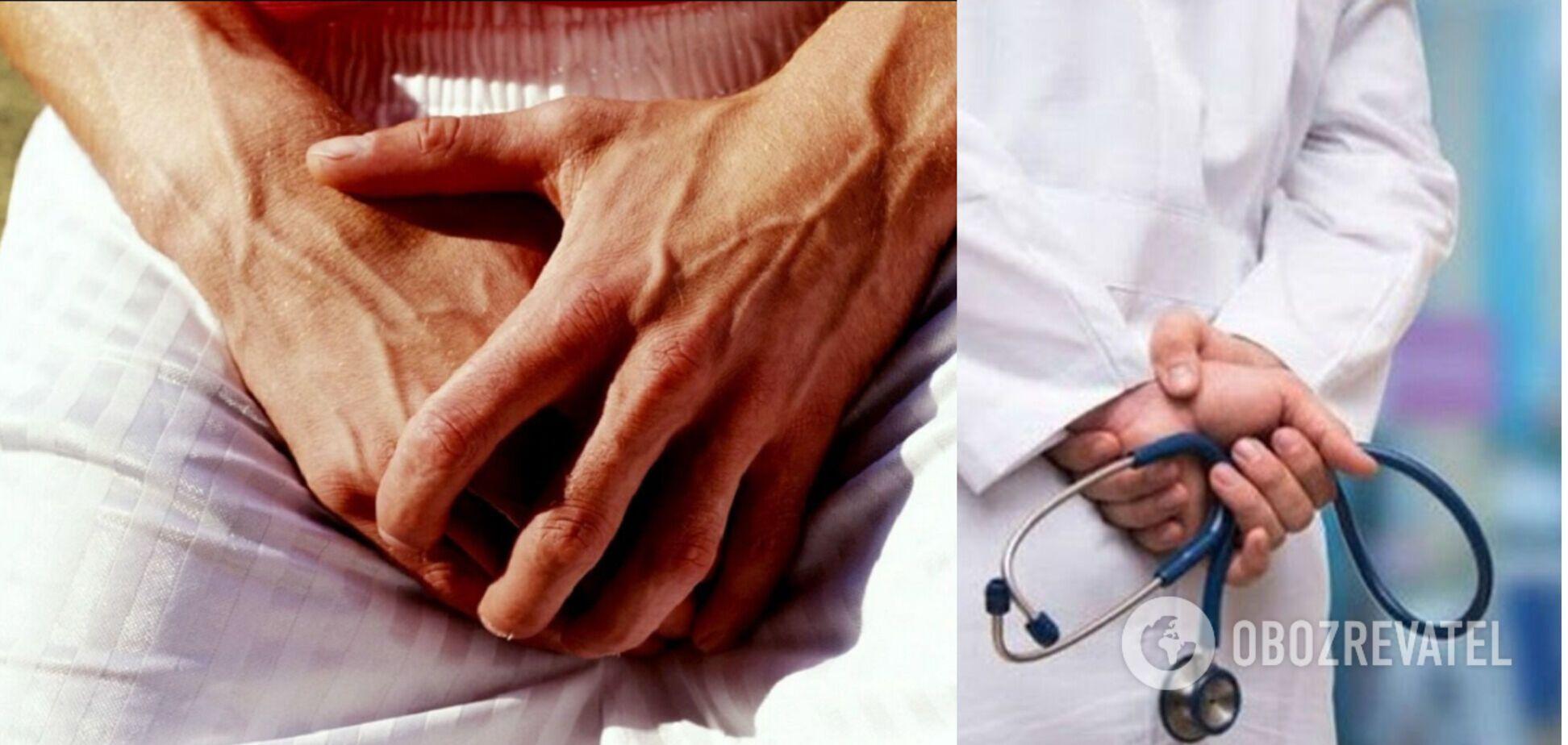 У британця зафіксували перший у світі вертикальний перелом статевого органа: вчені пояснили, як це сталося