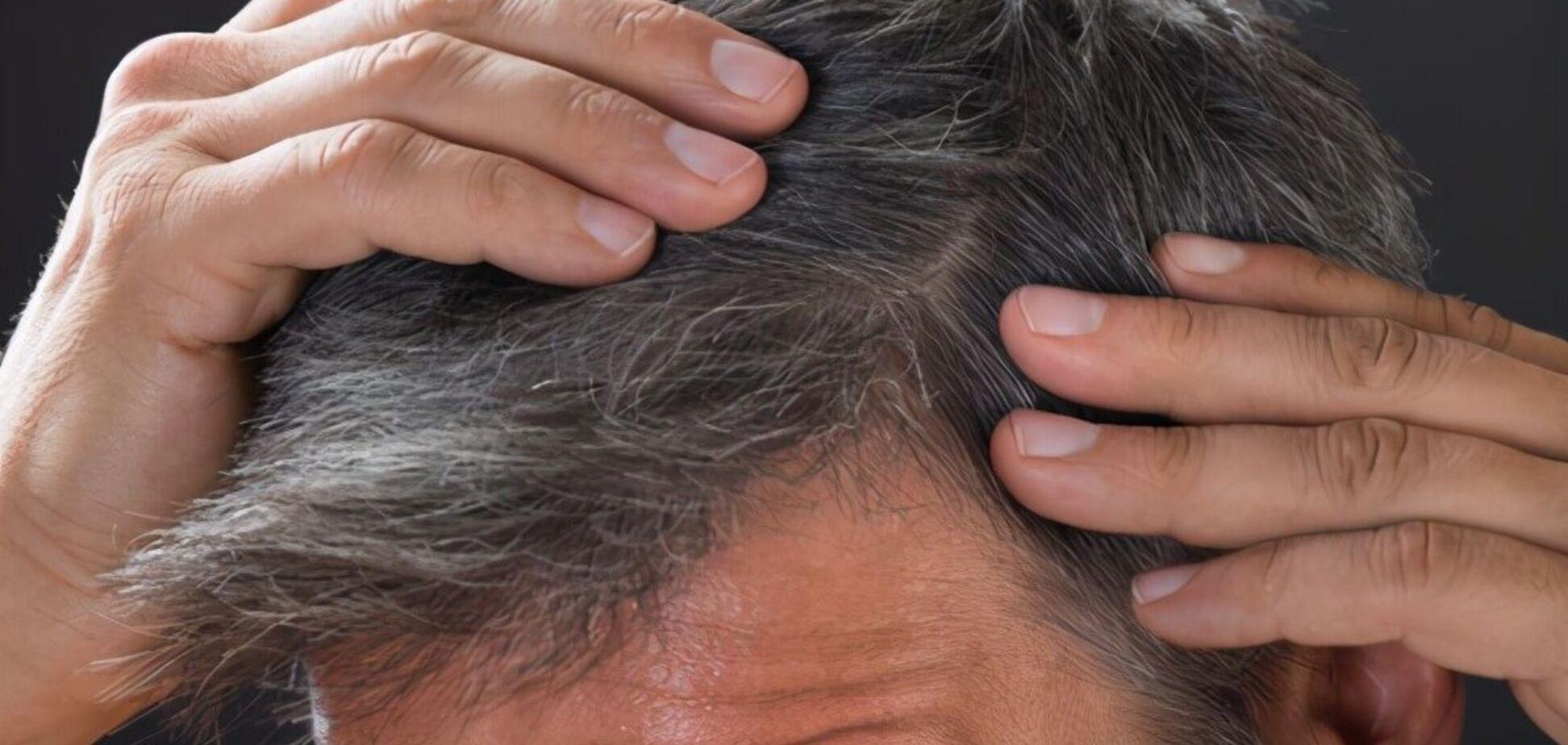 Як стрес впливає на посивіння волосся