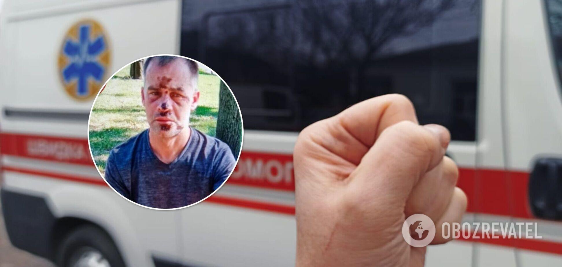 В Киеве неадекватный мужчина набросился на медиков с кинжалом и разбил скорую. Фото