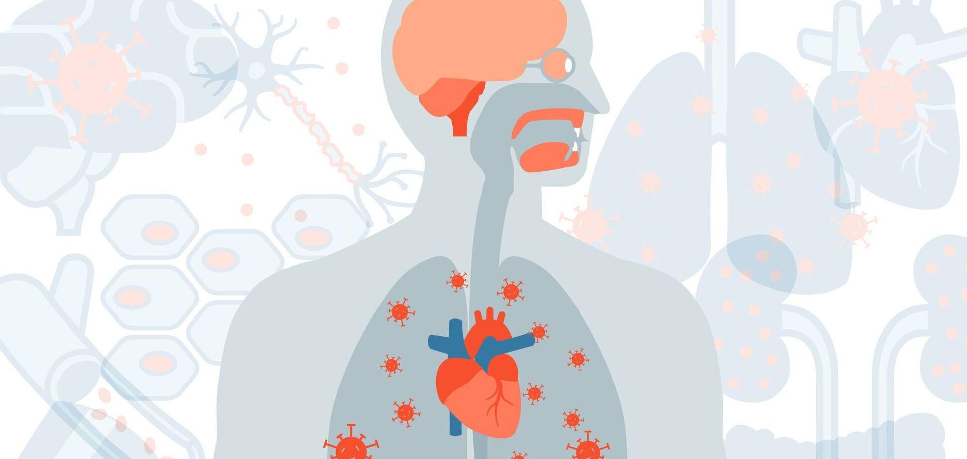 Вчені назвали нові симптоми тривалого COVID