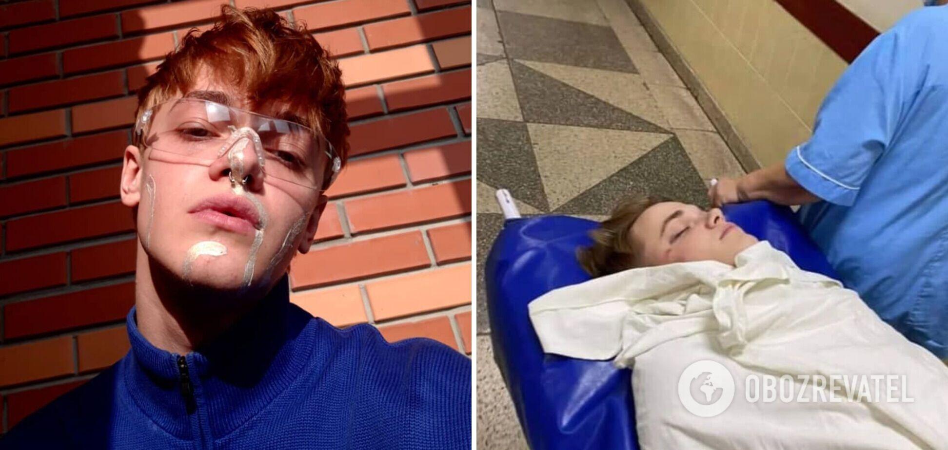Избитый танцор Дорофеевой впервые вышел на связь: впереди путь реабилитации