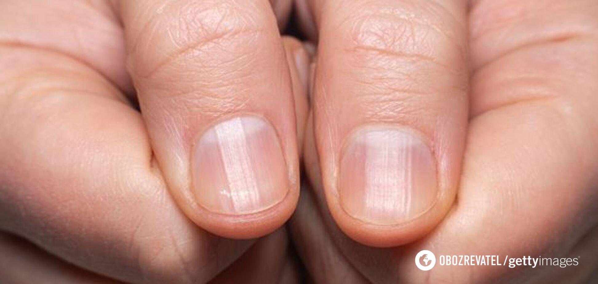 Состояние ногтей может говорить о перенесенном COVID-19