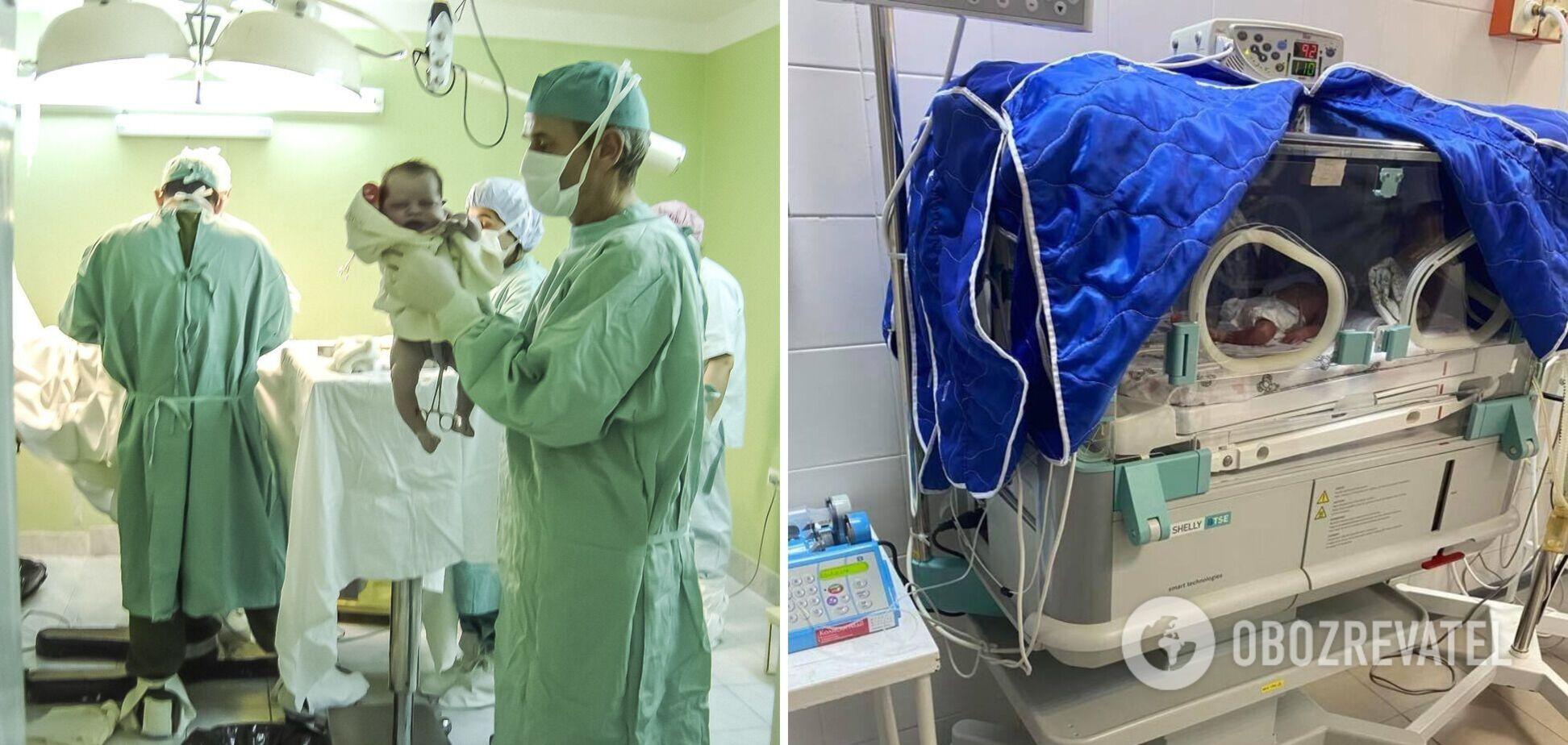 Ужгородские врачи спасли жизнь недоношенным тройняшкам: таких операций ранее в Украине не делали. Фото