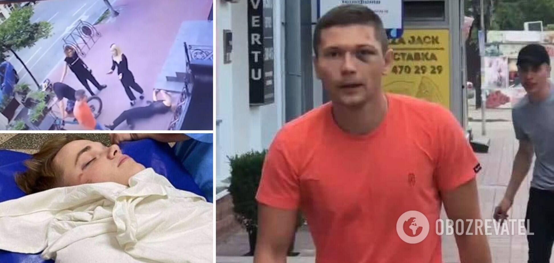 В УДО ухвалили рішення щодо співробітника, який побив танцюриста Наді Дорофєєвої