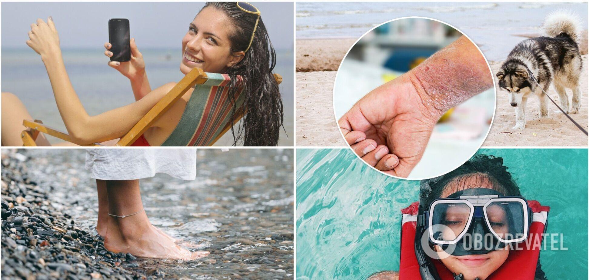Підчепили грибок, лишай і коросту на пляжі? Дерматолог каже, що це реально