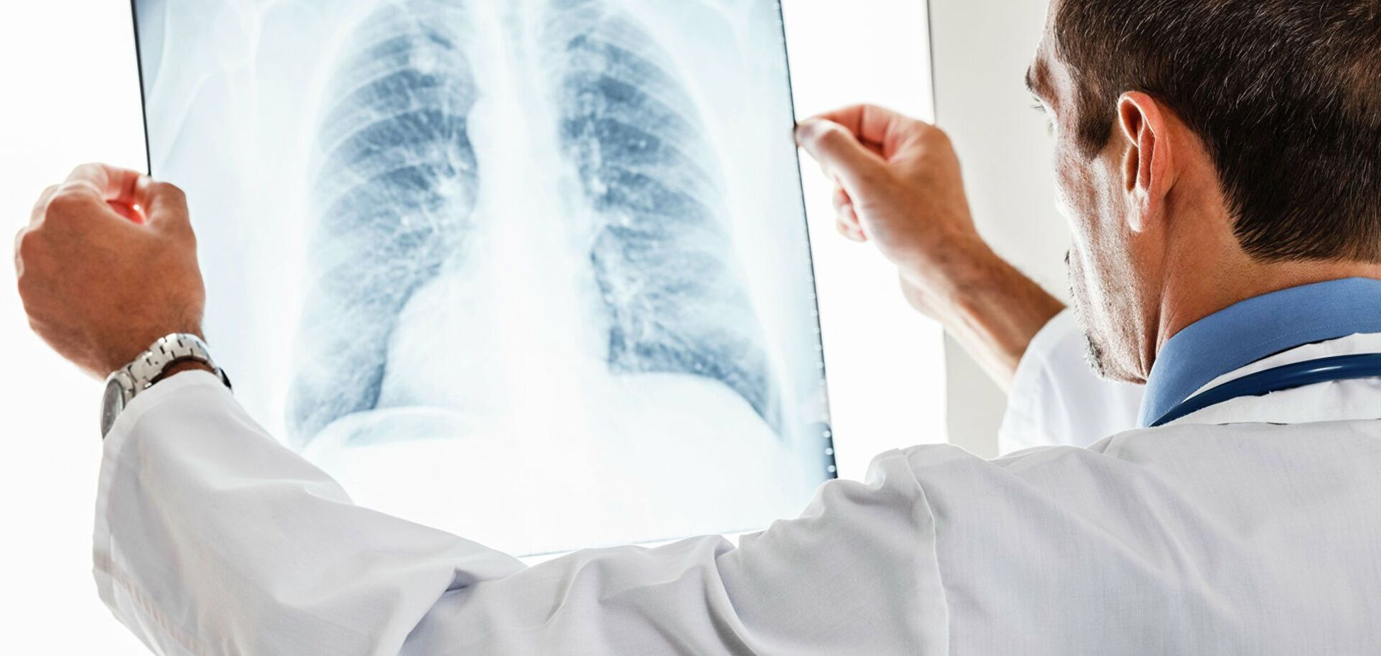 На рентгенівських знімках можна побачити різницю в легких вакцинованого і невакцинованого пацієнтів з коронавірусів