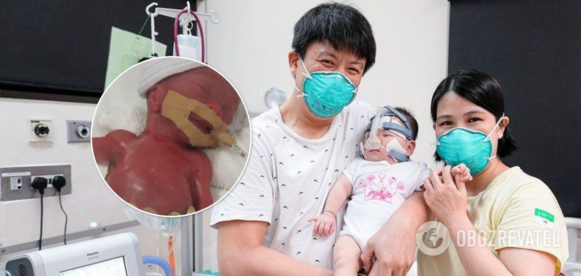 'Найменшу дитину при народженні' виписали з лікарні: дівчинка народилася вагою з яблуко. Фото