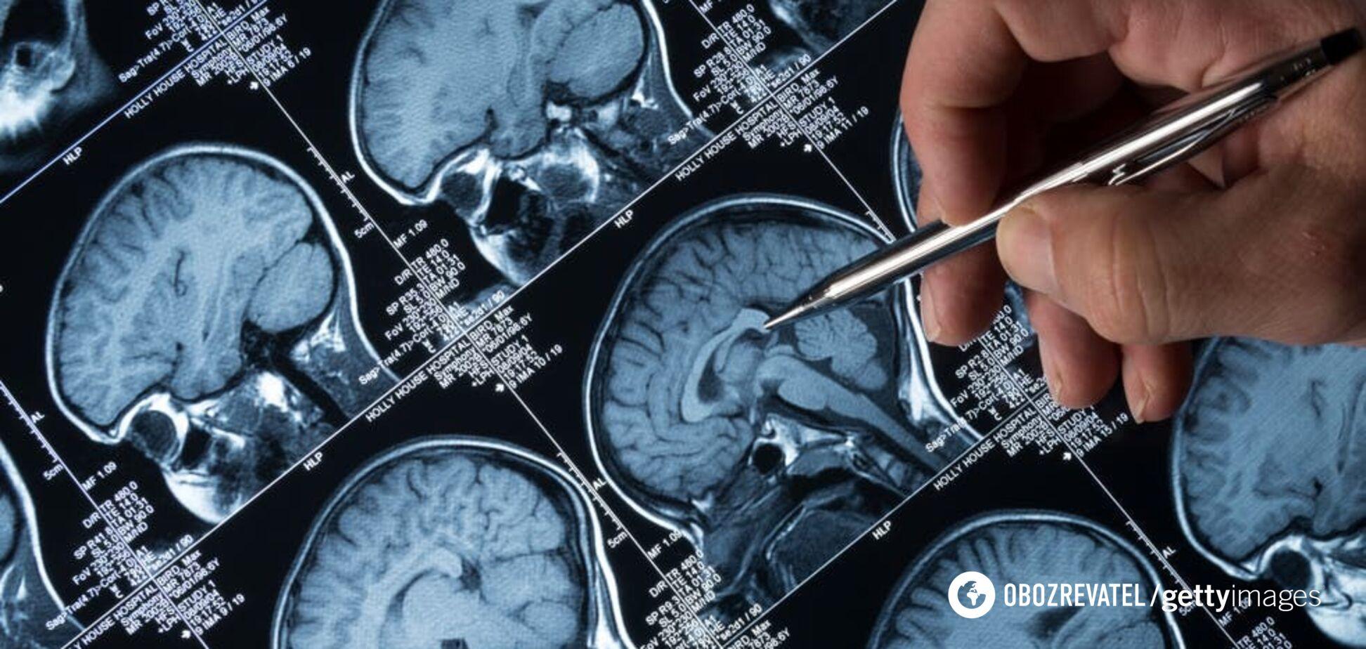 Знайдено зв'язок між різними хворобами головного мозку