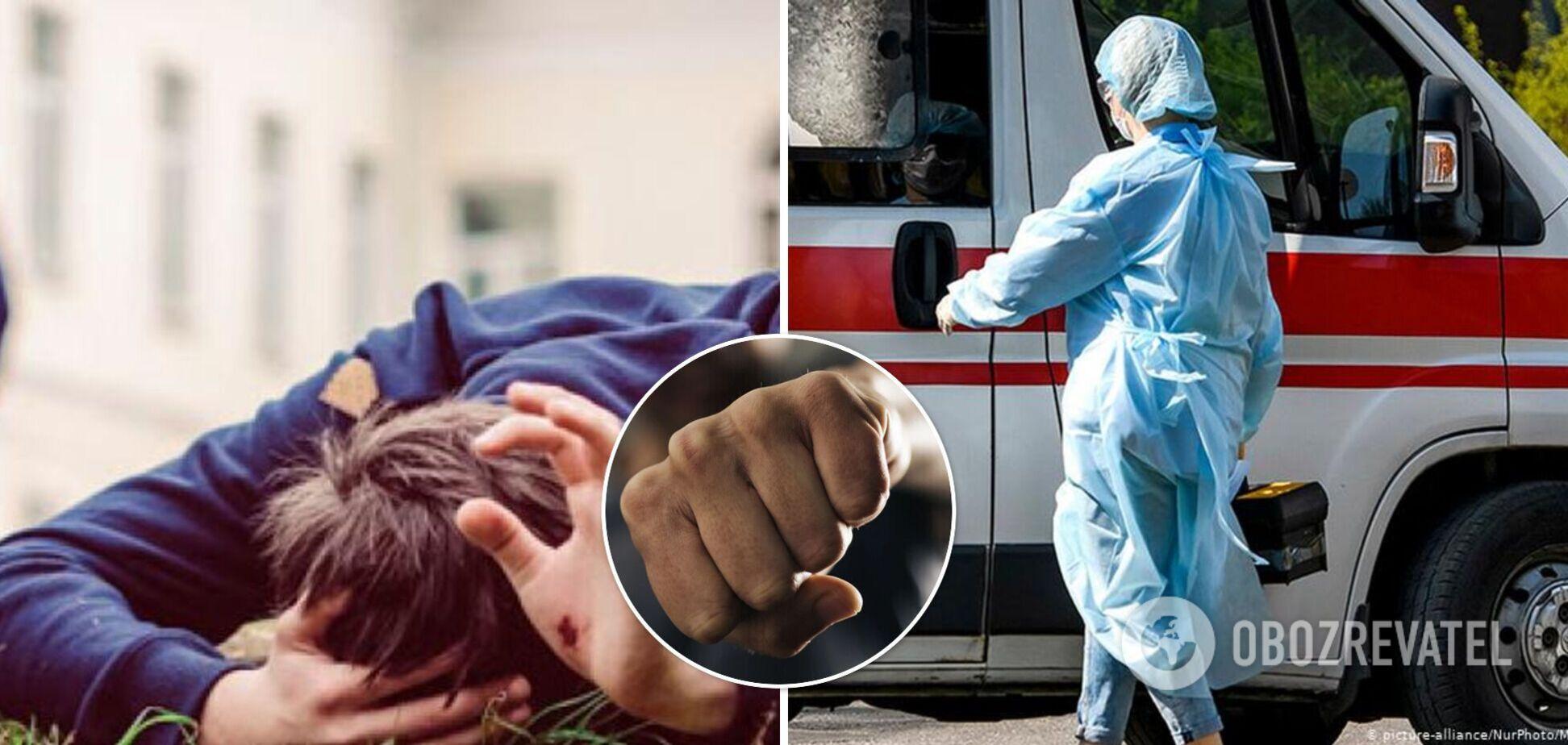 В Николаеве школьники избили ребенка на спортплощадке: мальчик попал в больницу