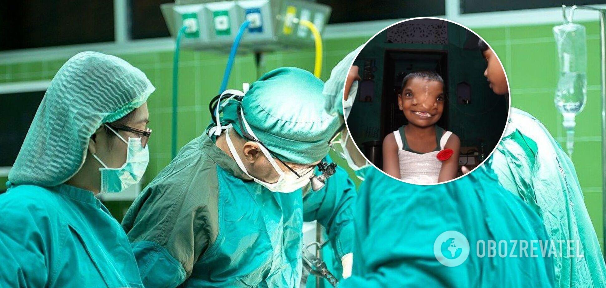 В Индии прооперировали девочку, родившуюся с хоботом: ее сравнили с божеством. Фото