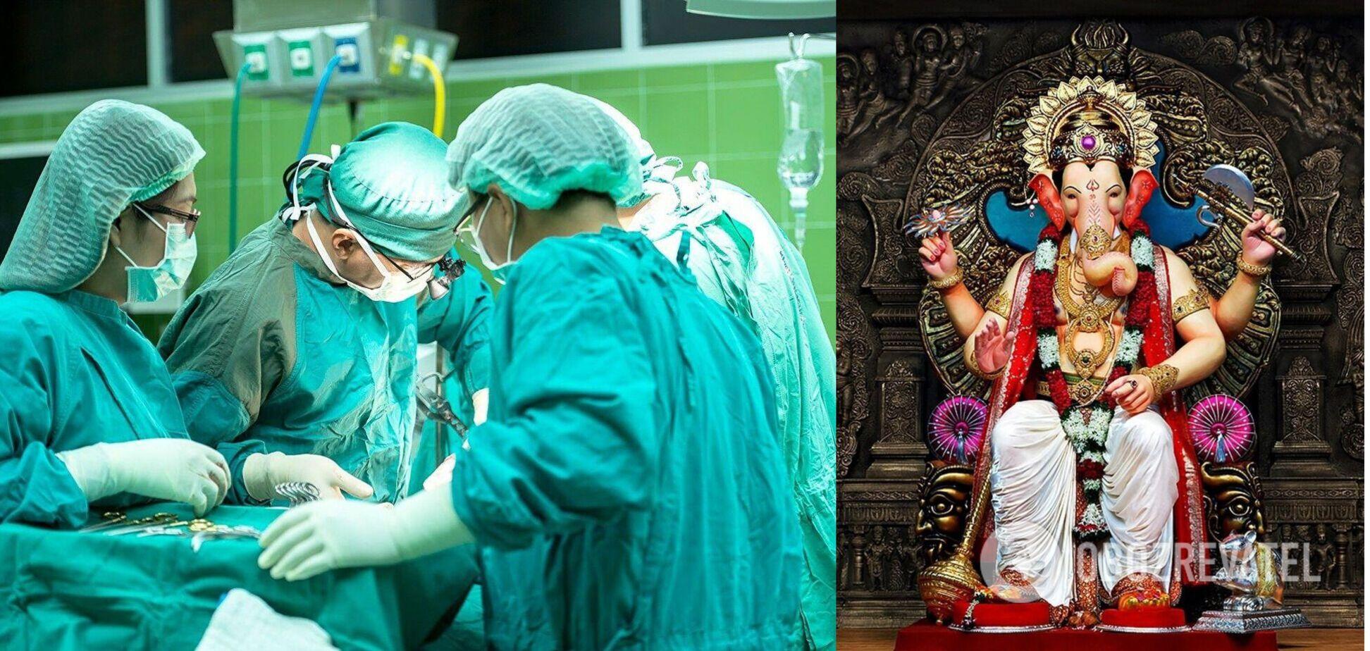 В Индии прооперировали девочку, родившуюся с хоботом: ее сравнили с божеством. Фото 18+