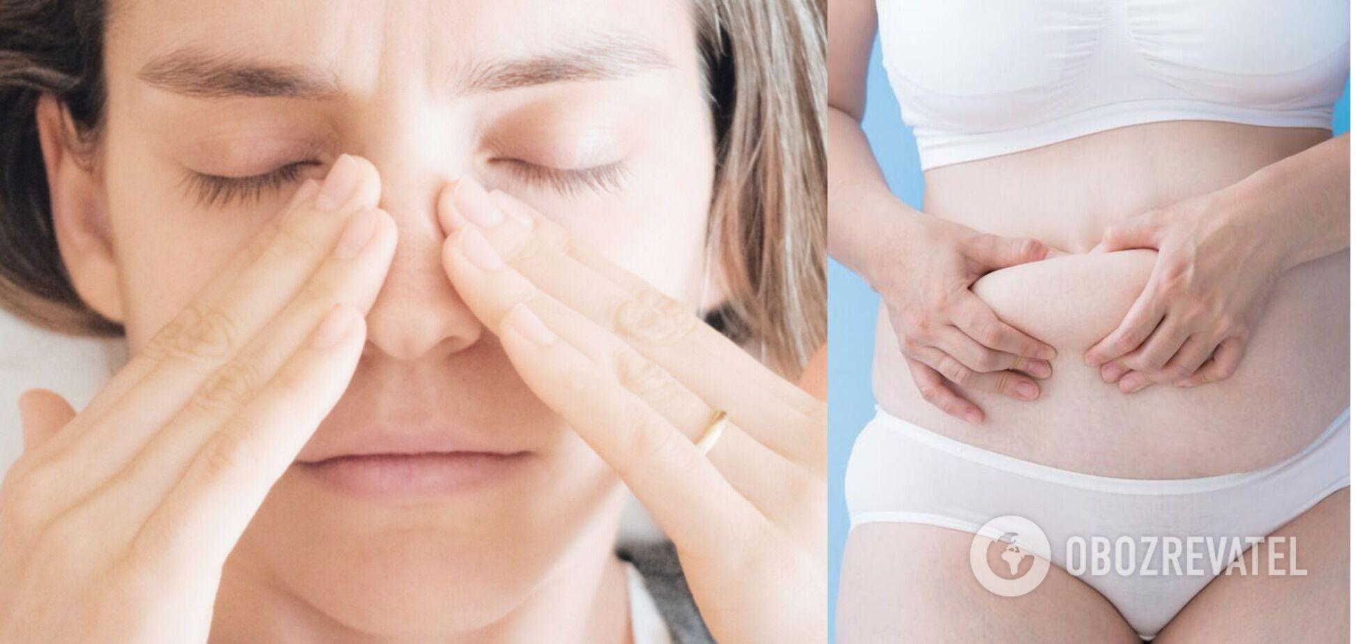 Закладеність носа призводить до зайвої ваги
