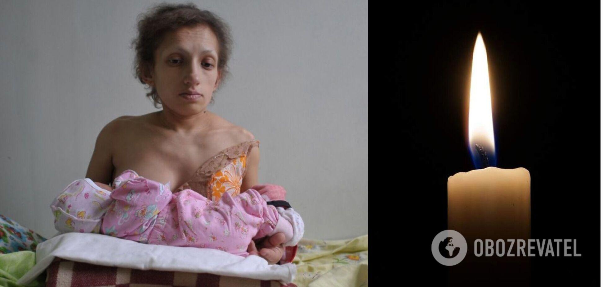 На Львовщине умерла самая низкая мама в Украине. Фото
