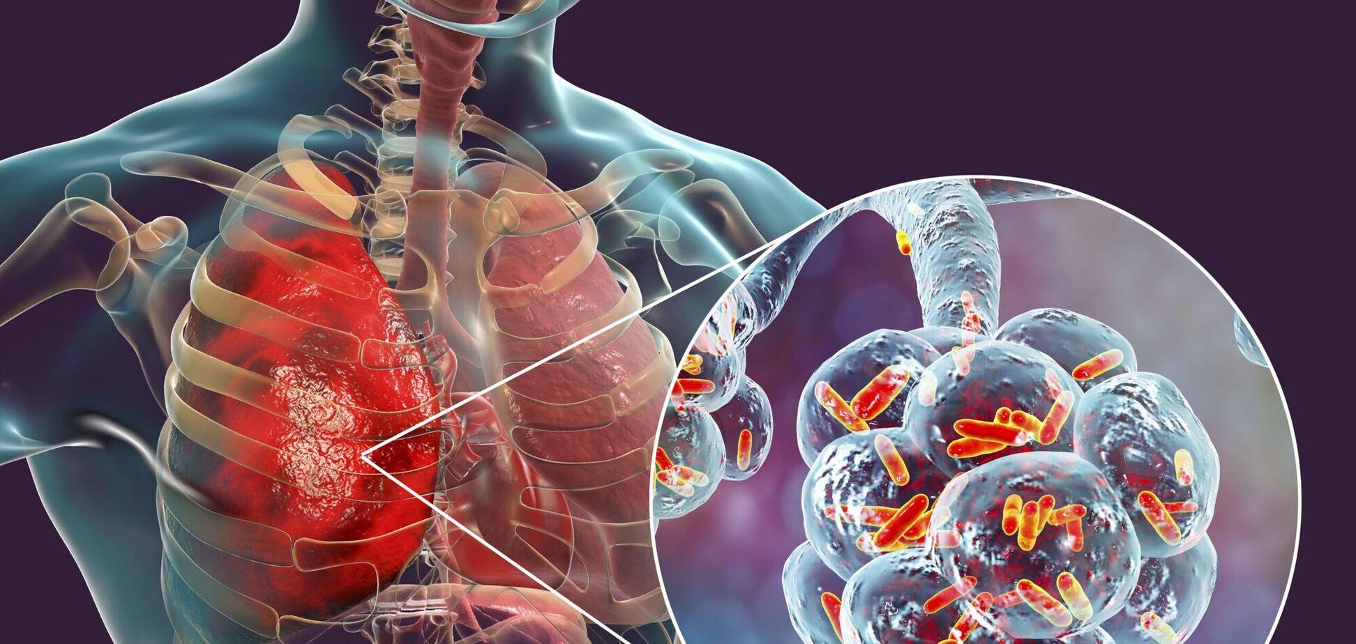 Как разные болезни влияют на легкие