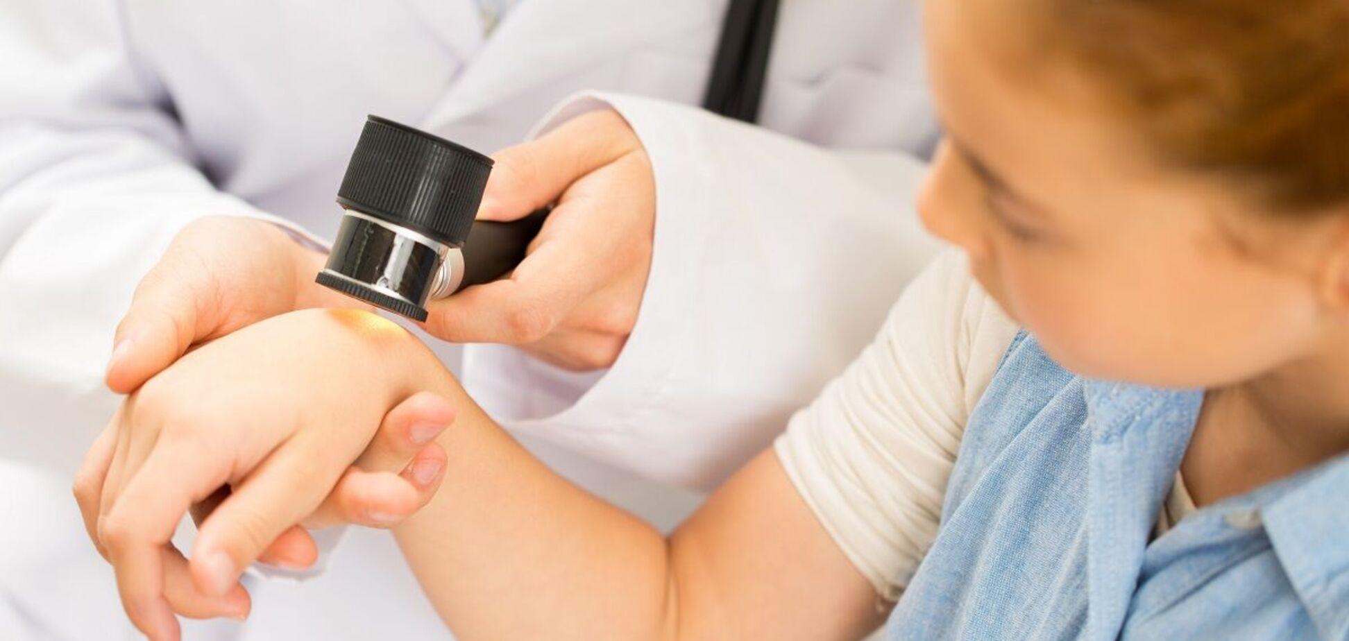 Лечение псориаза у детей: результаты метаанализа