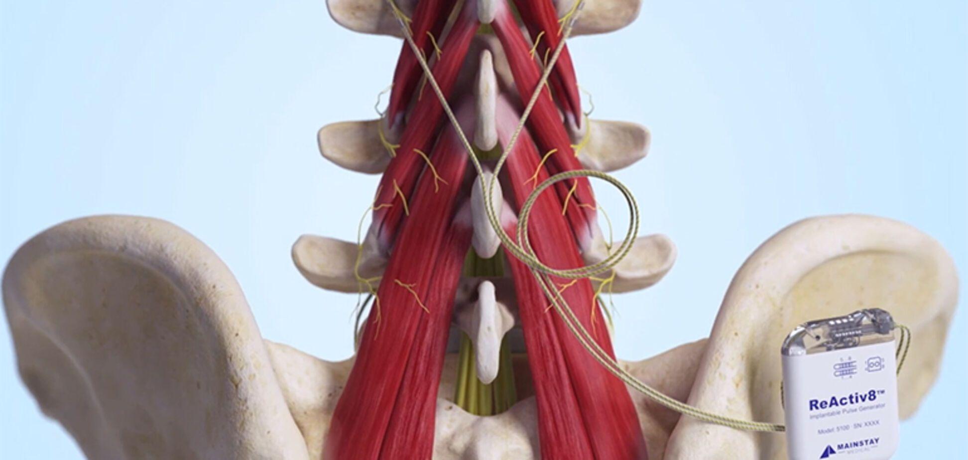 Имплантат при болях в пояснице: как работает устройство