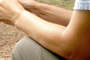 Мурашки по коже