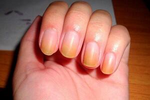 Ногти желтые