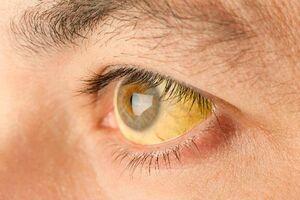 Жовті склери