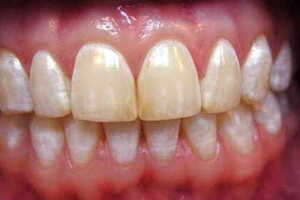 Меловидное (белое) пятно на зубе